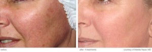 hair removal laser before and after